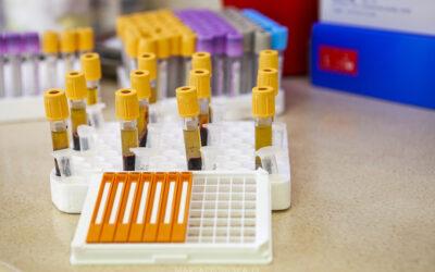 Testy na koronawirusa – który i kiedy wybrać?